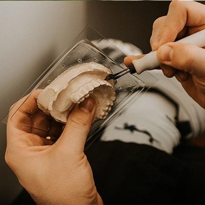 A teeth model being prepared for a restorative dentistry procedure